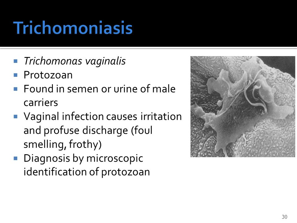 Trichomoniasis Trichomonas vaginalis Protozoan