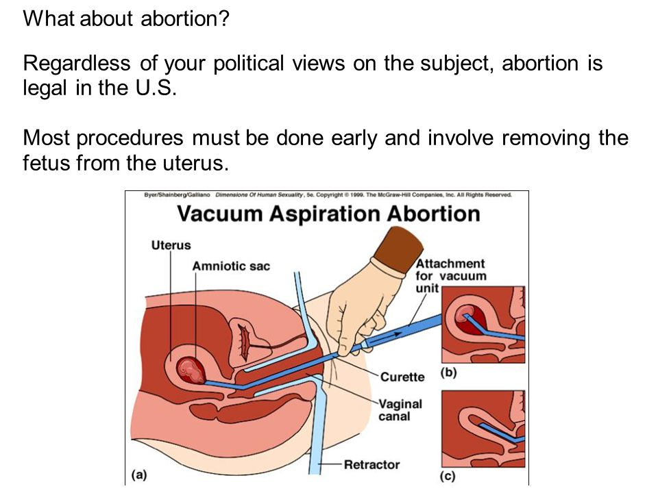 What about abortion Regardless of your political views on the subject, abortion is legal in the U.S.
