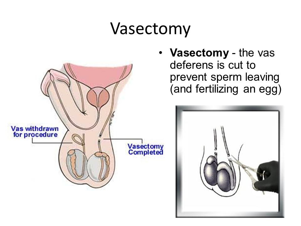 Vasectomy Vasectomy - the vas deferens is cut to prevent sperm leaving (and fertilizing an egg)