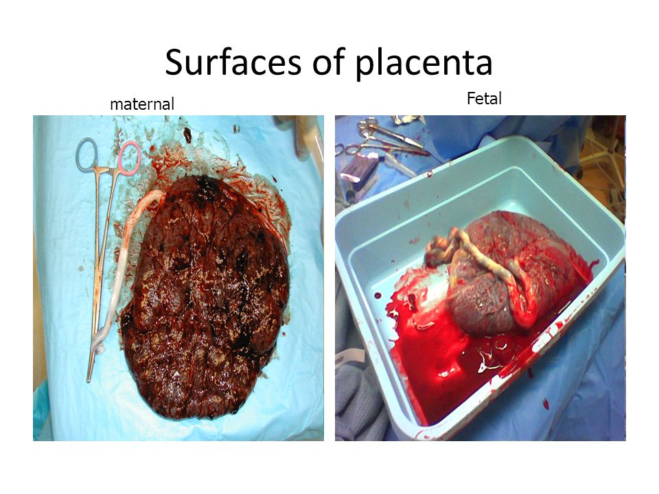 Surfaces of placenta Fetal maternal