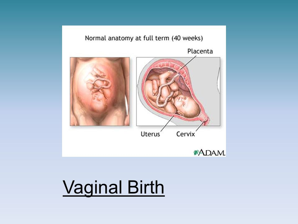 Vaginal Birth