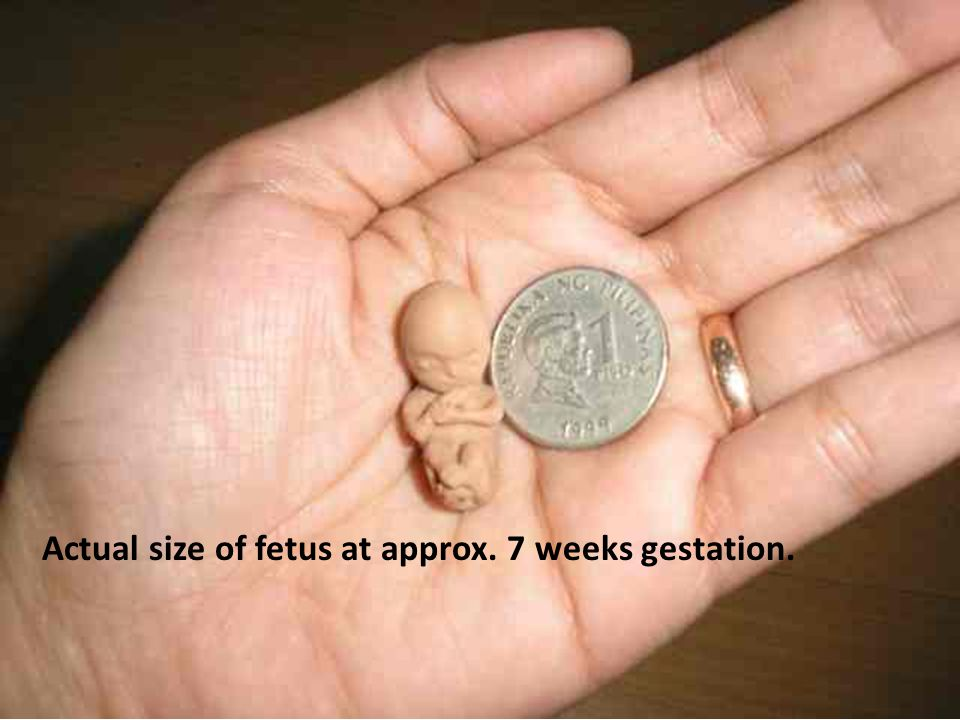 Actual size of fetus at approx. 7 weeks gestation.