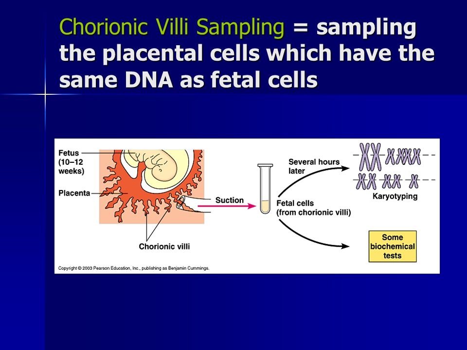 Chorionic Villi Sampling = sampling the placental cells which have the same DNA as fetal cells