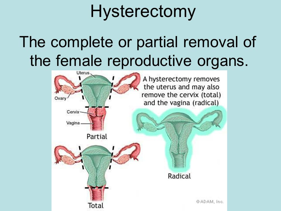 Hysterectomy The complete or partial removal of the female reproductive organs.