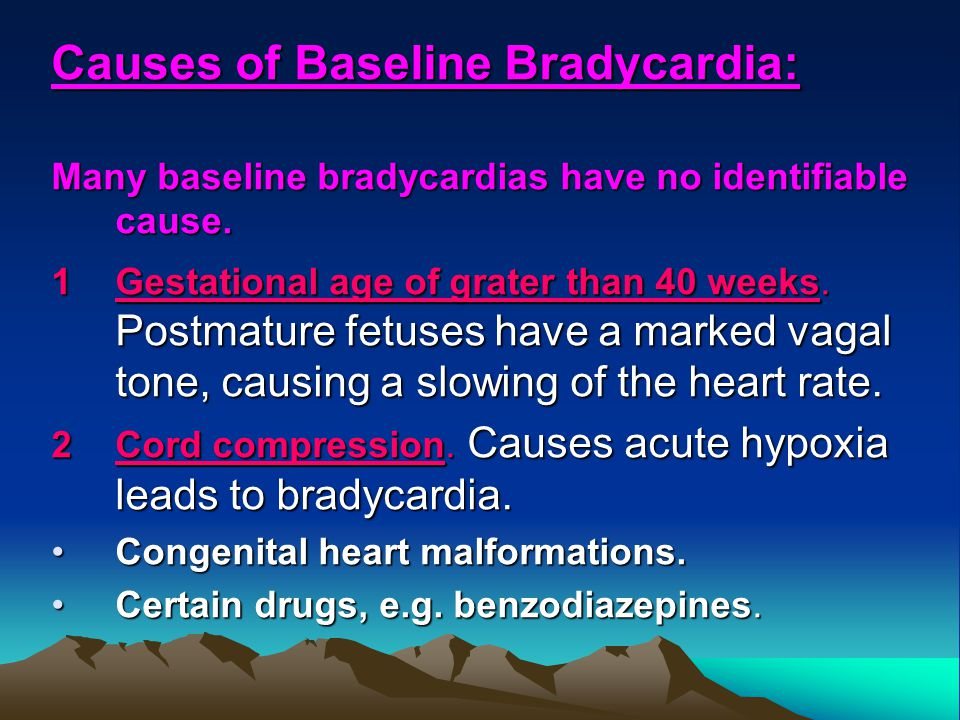 Causes of Baseline Bradycardia:
