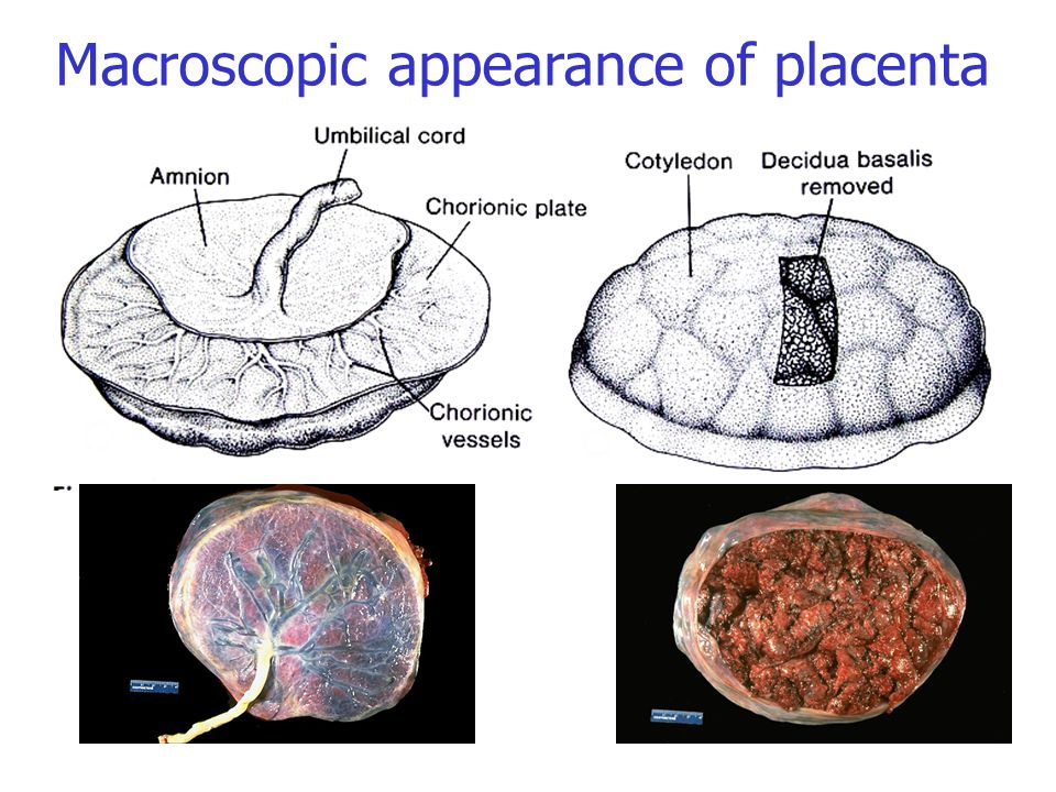 Macroscopic appearance of placenta