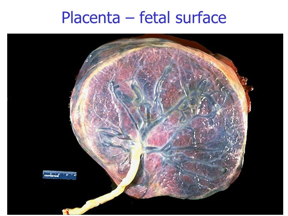 Placenta – fetal surface