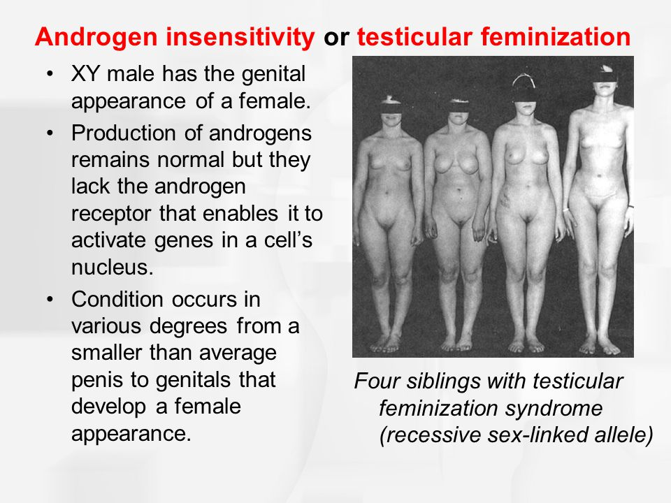 Androgen insensitivity or testicular feminization