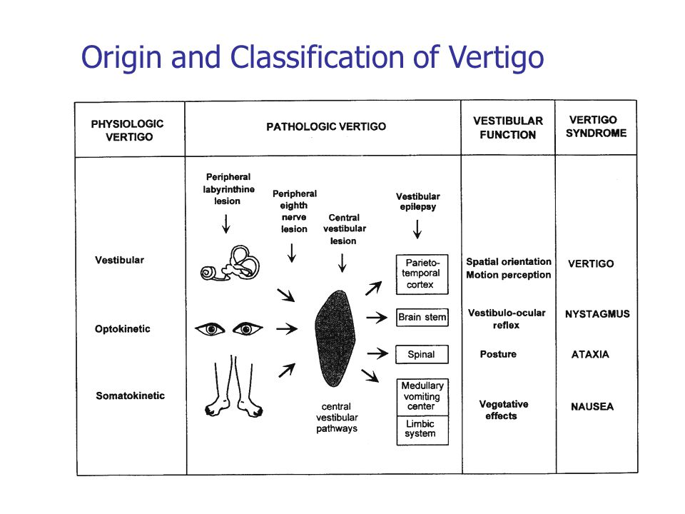 Origin and Classification of Vertigo