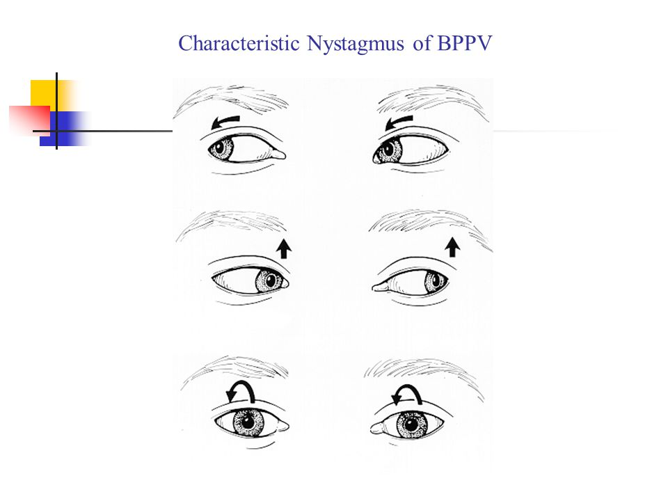 Characteristic Nystagmus of BPPV