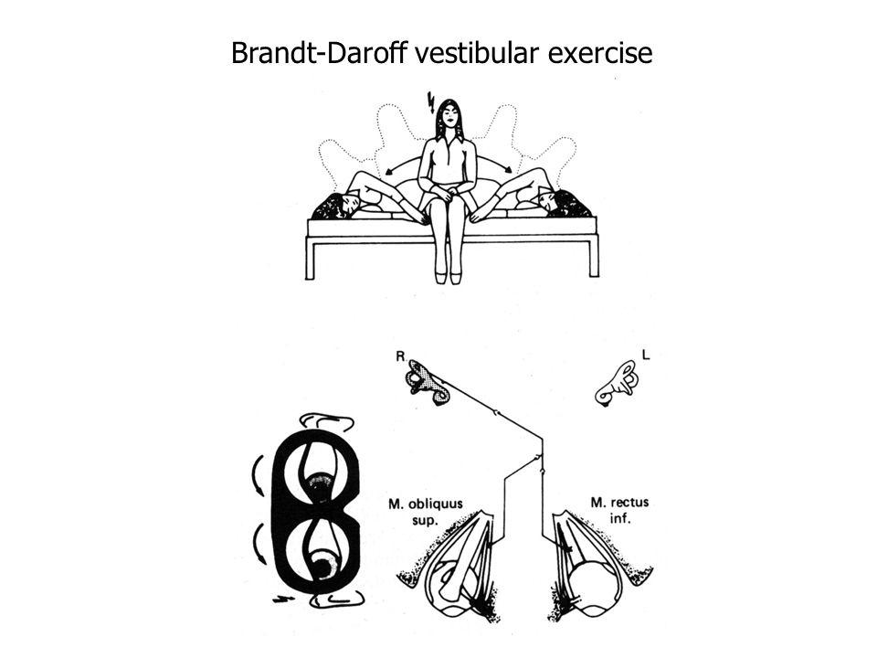 Brandt-Daroff vestibular exercise