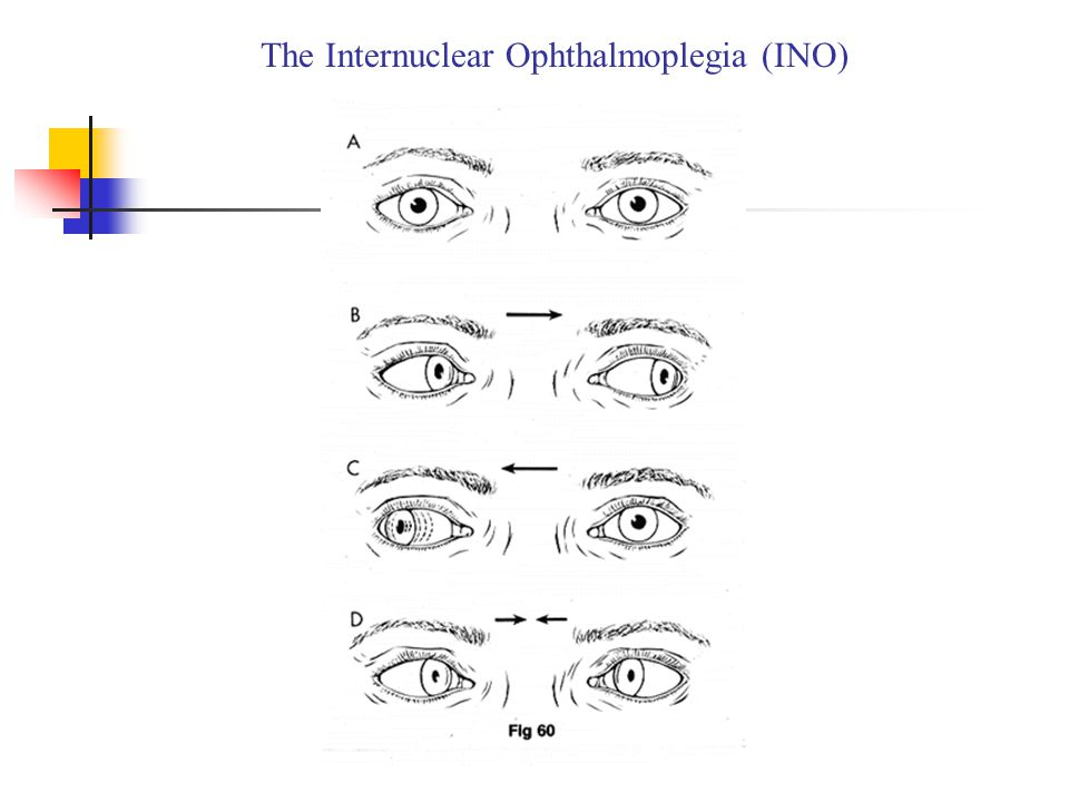 The Internuclear Ophthalmoplegia (INO)