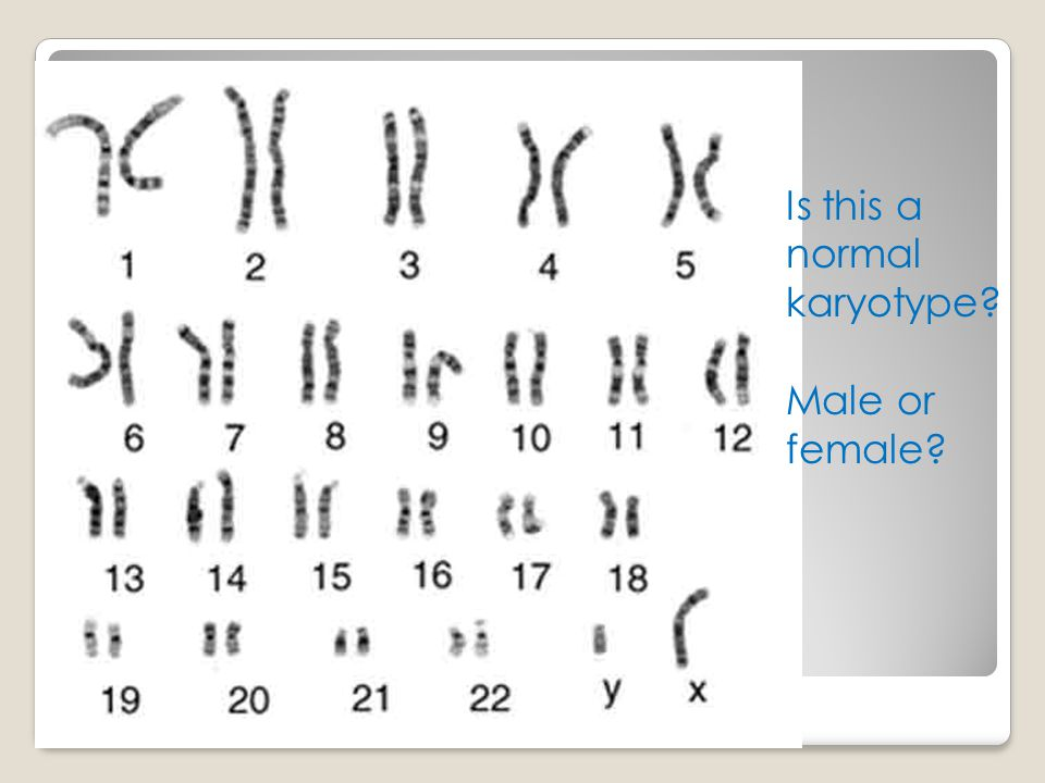 Is this a normal karyotype