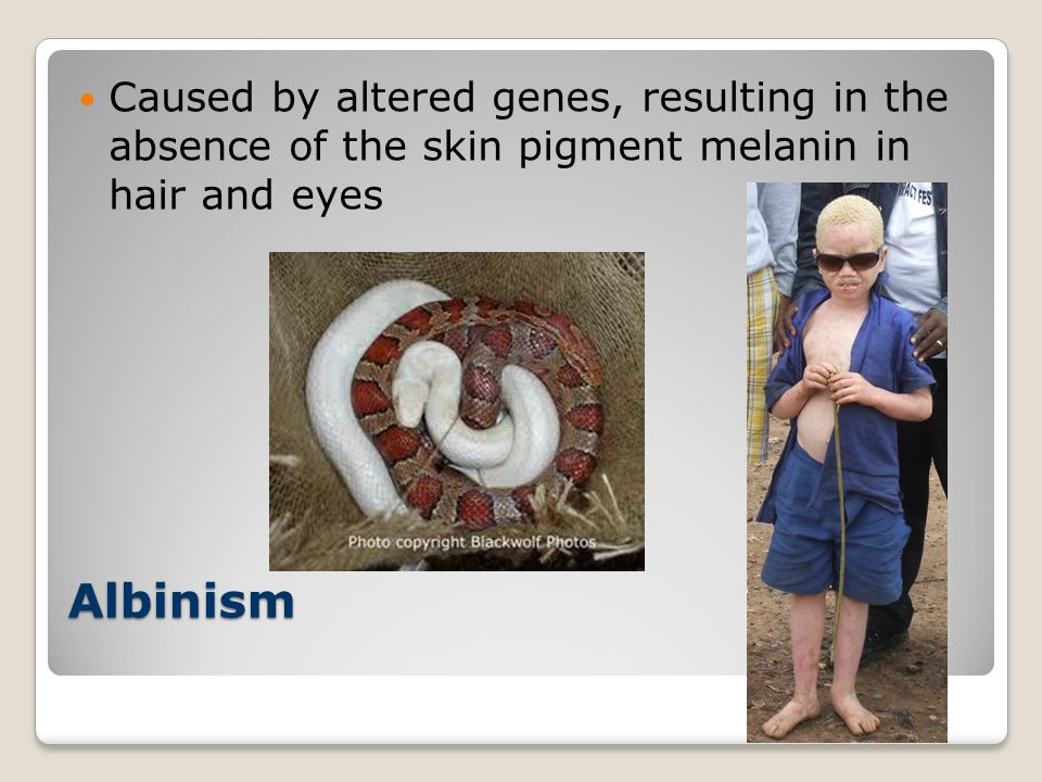 Caused by altered genes, resulting in the absence of the skin pigment melanin in hair and eyes