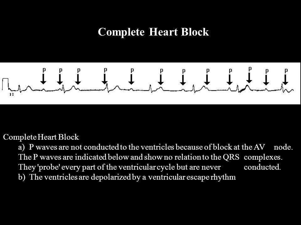 Complete Heart Block Complete Heart Block