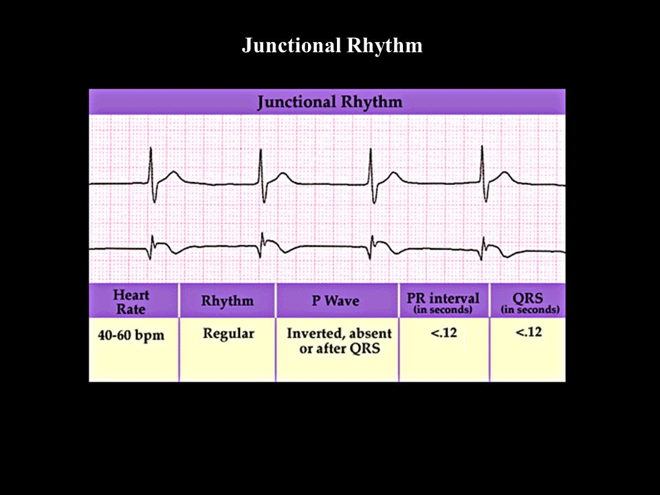 Junctional Rhythm Junctional Rhythm