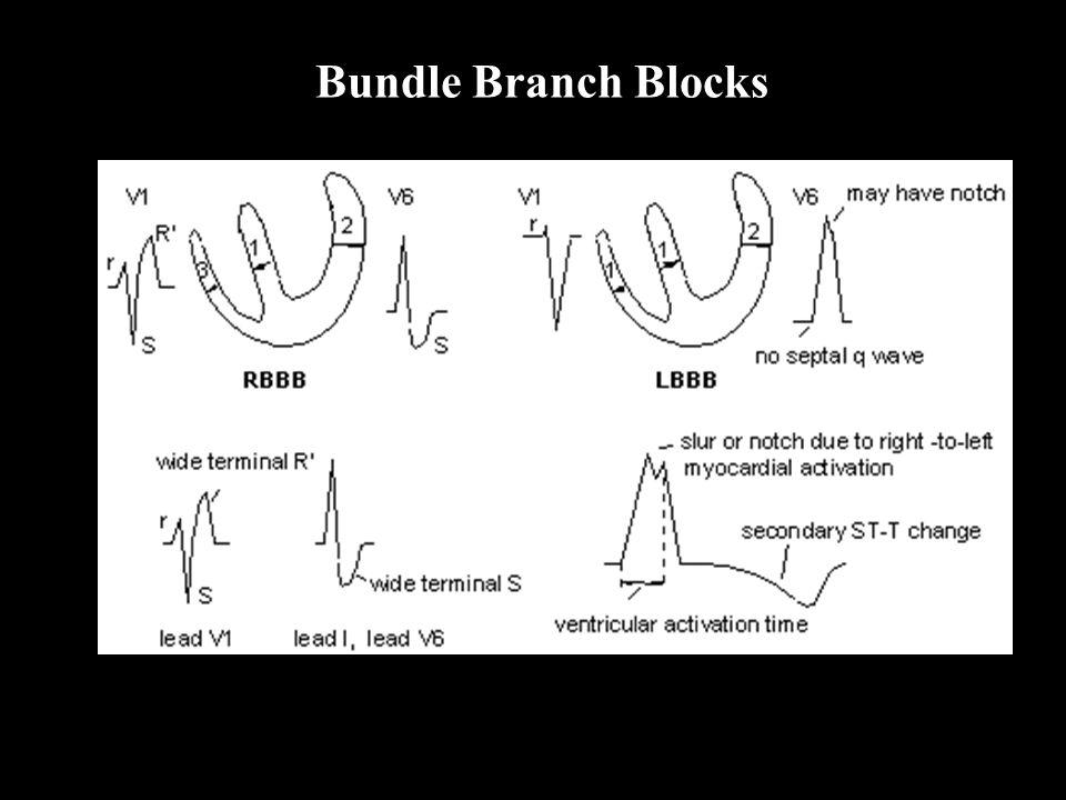 Bundle Branch Blocks