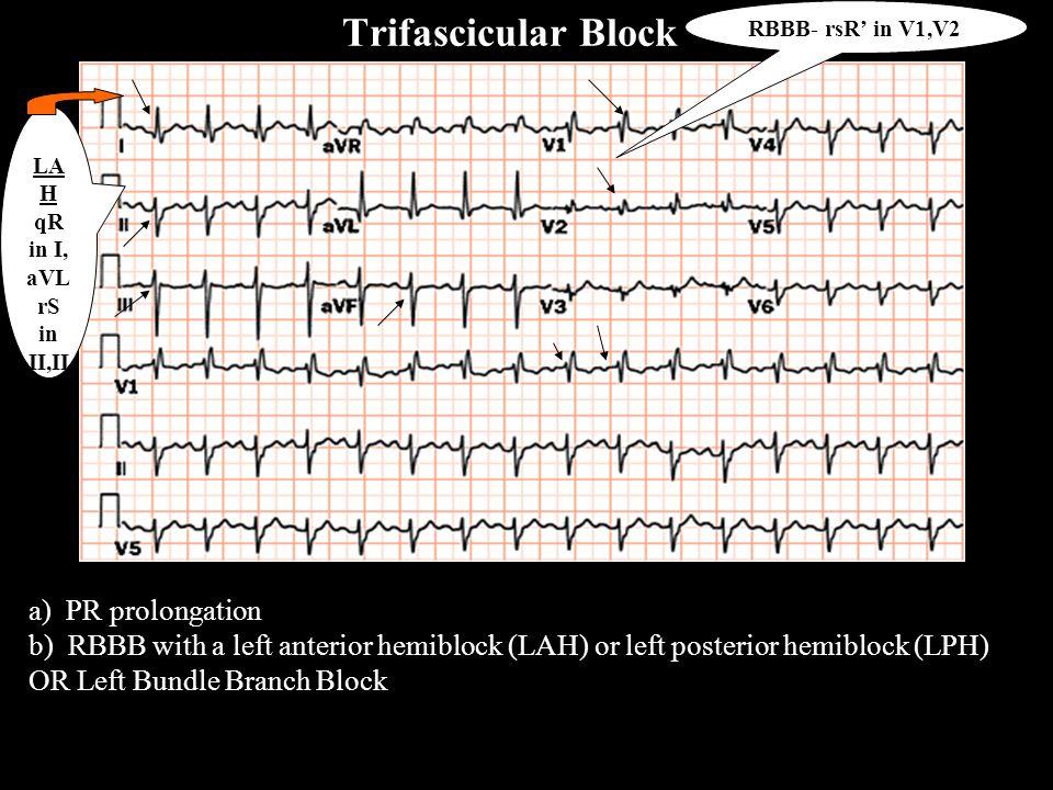 Trifascicular Block RBBB- rsR' in V1,V2. LAH qR in I, aVL. rS in II,III aVF.