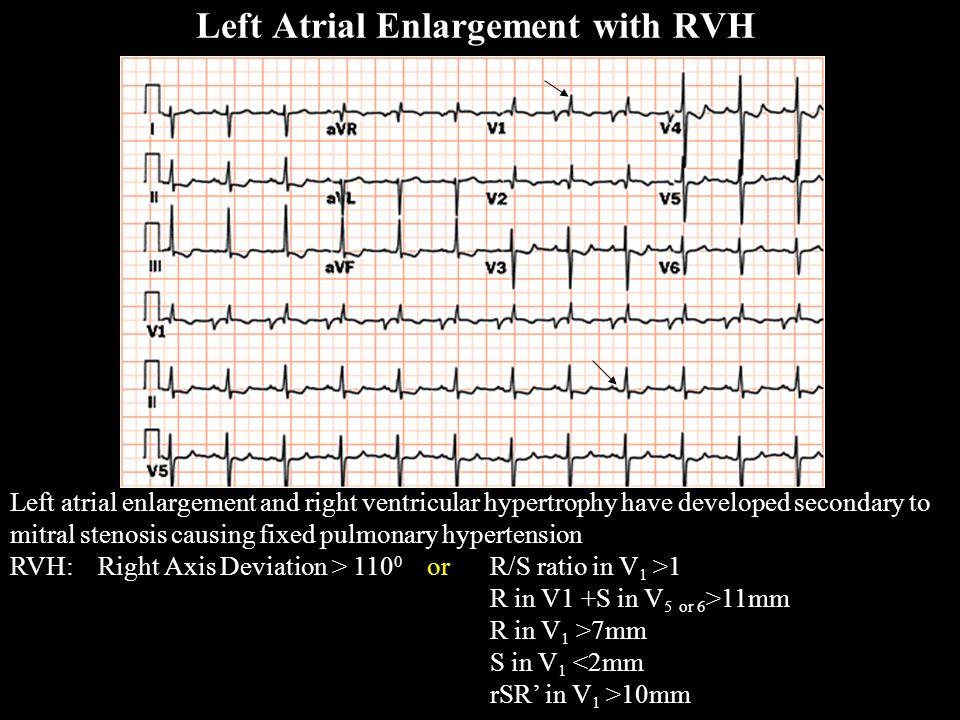 Left Atrial Enlargement with RVH