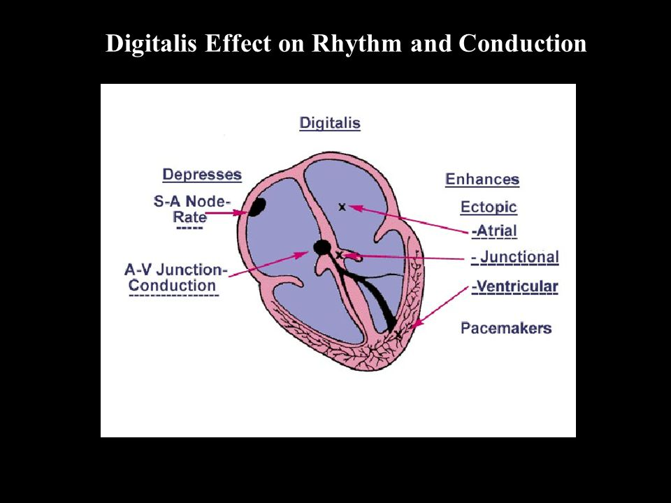 Digitalis Effect on Rhythm and Conduction