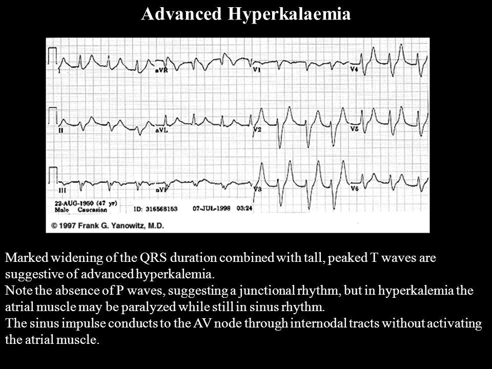 Advanced Hyperkalaemia