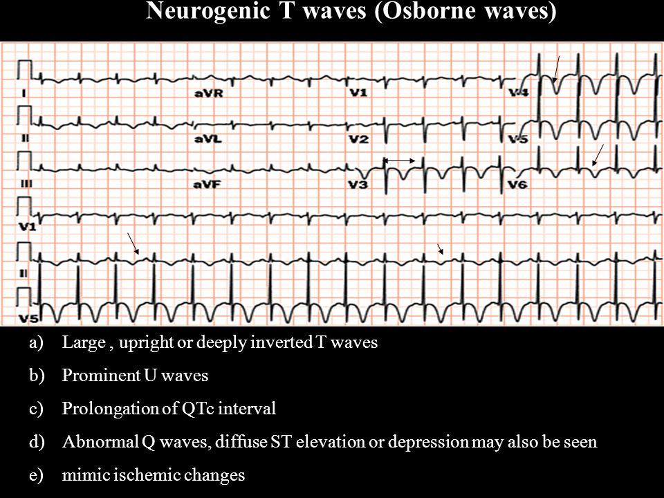 Neurogenic T waves (Osborne waves)