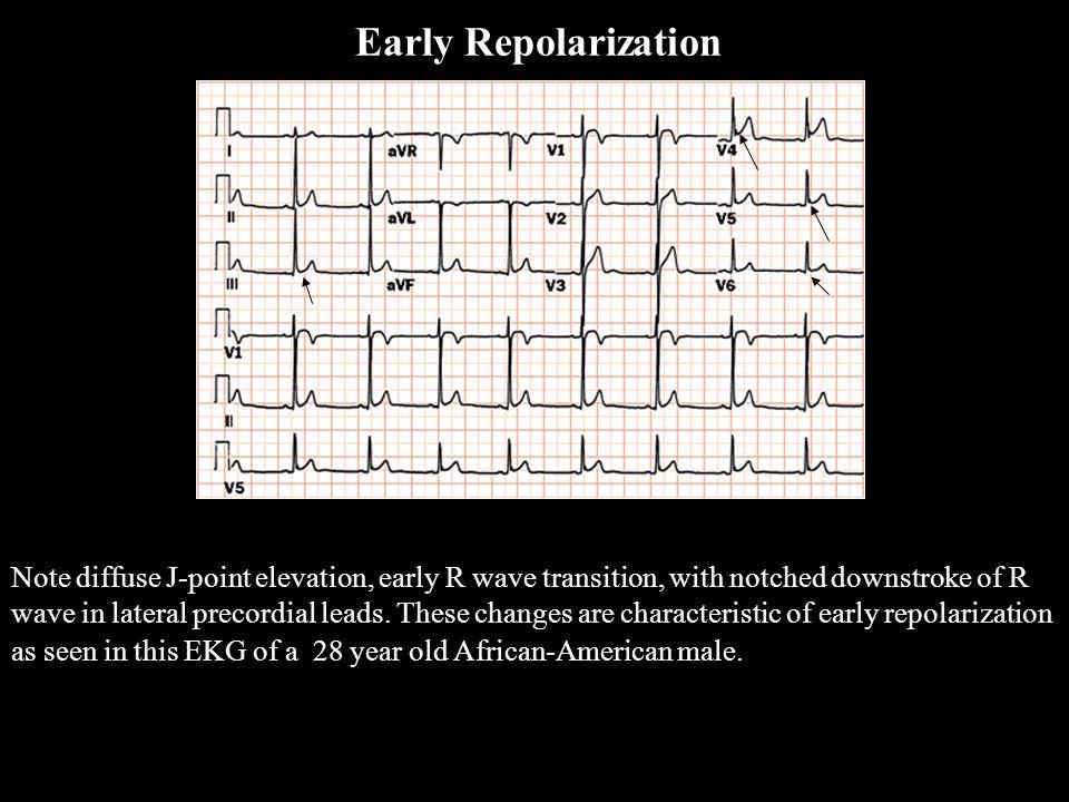 Early Repolarization