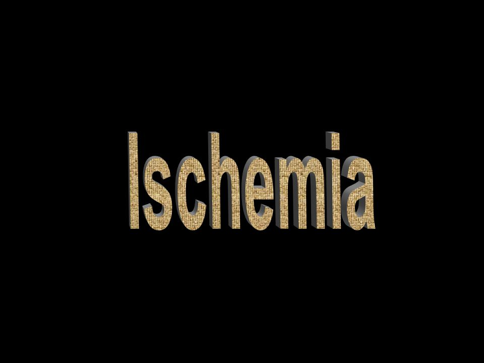 ischemia Ischemia