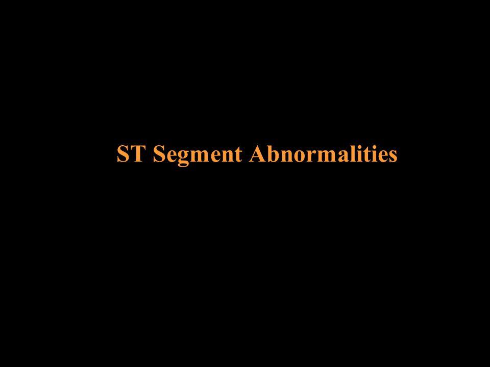 ST Segment Abnormalities