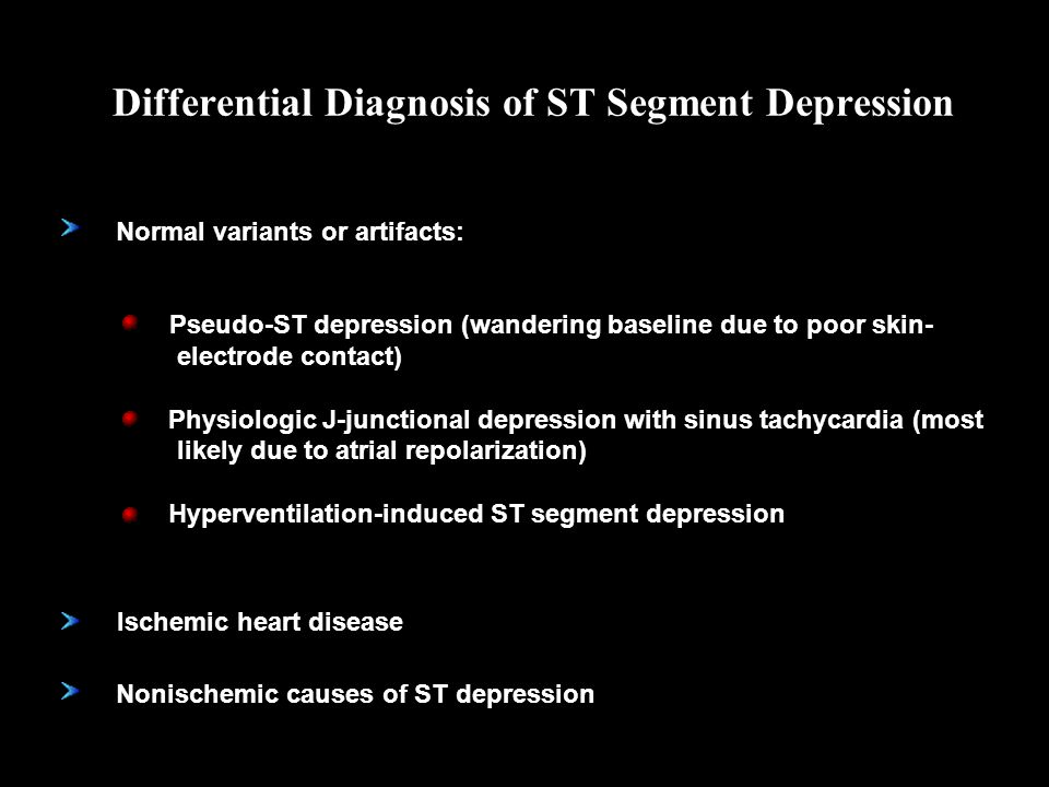 Differential Diagnosis of ST Segment Depression