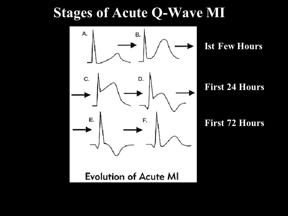 Stages of Acute Q-Wave MI