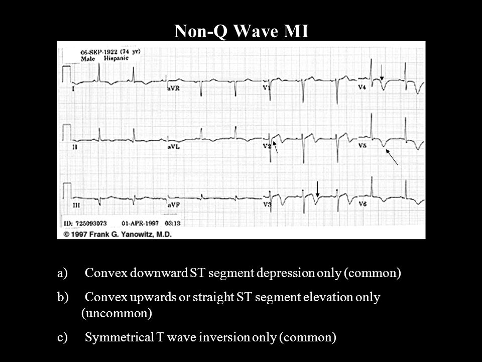 Non-Q Wave MI Convex downward ST segment depression only (common)