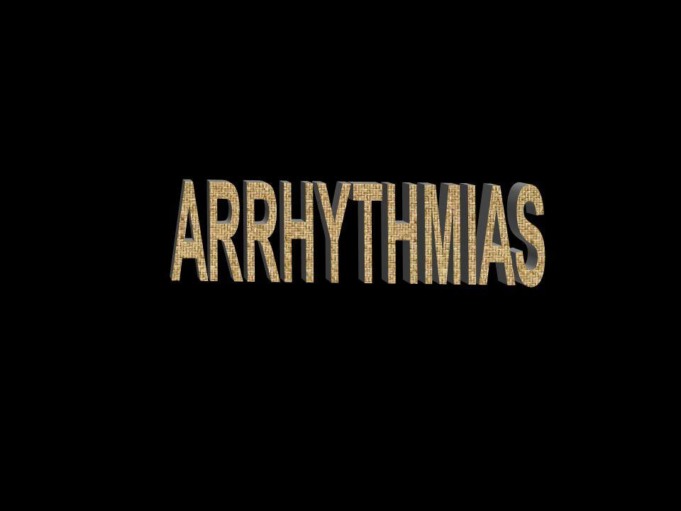 Arrhythmias ARRHYTHMIAS