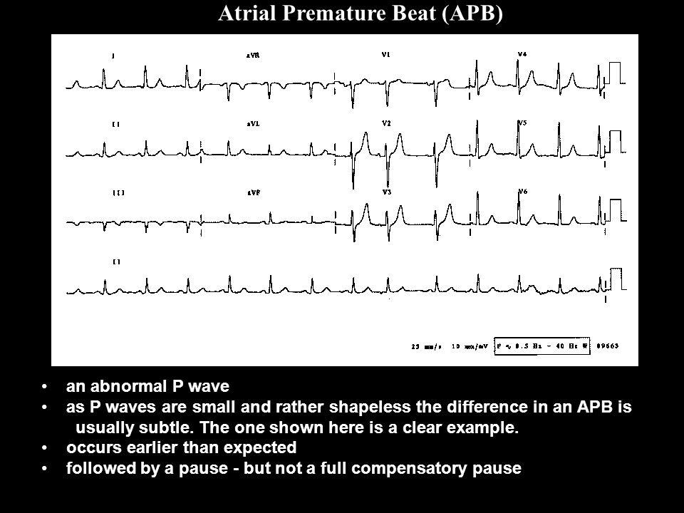 Atrial Premature Beat (APB)