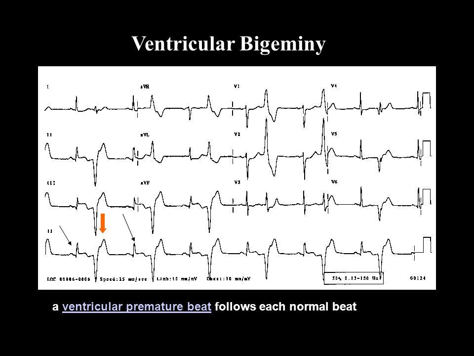 Ventricular Bigeminy Bigeminy a ventricular premature beat follows each normal beat