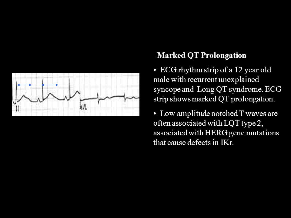 QT prolongation Marked QT Prolongation