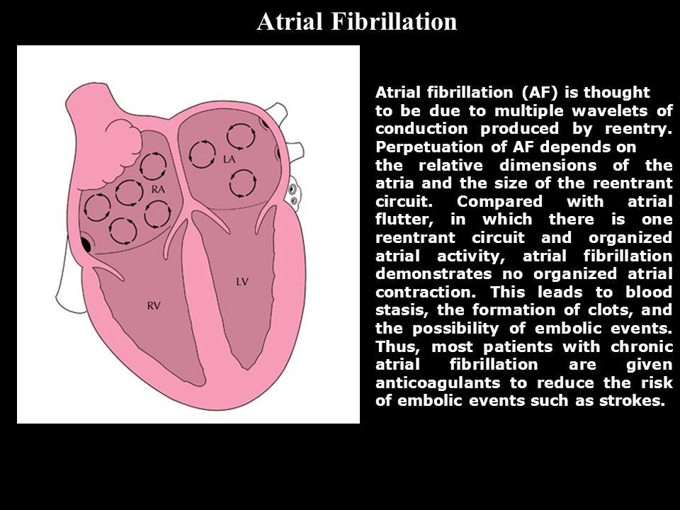 Atrial Fibrillation Atrial fibrillation (AF) is thought