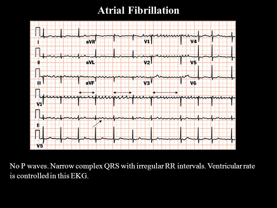 Atrial Fibrillation A Fib. No P waves. Narrow complex QRS with irregular RR intervals.