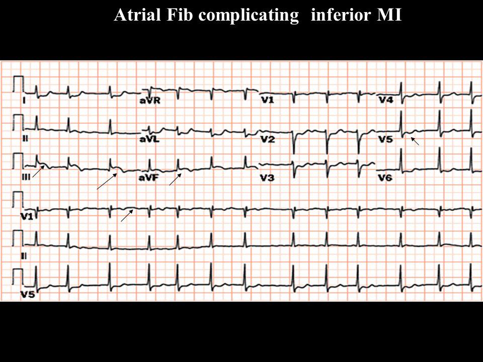 Atrial Fib complicating inferior MI