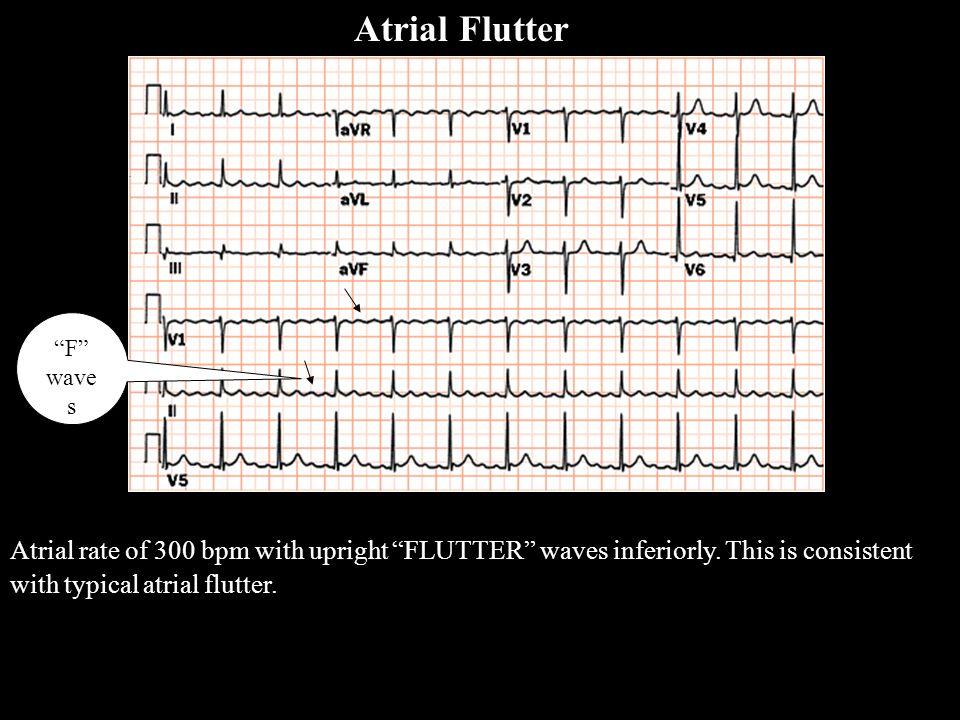 Atrial Flutter A Flutter. F waves.