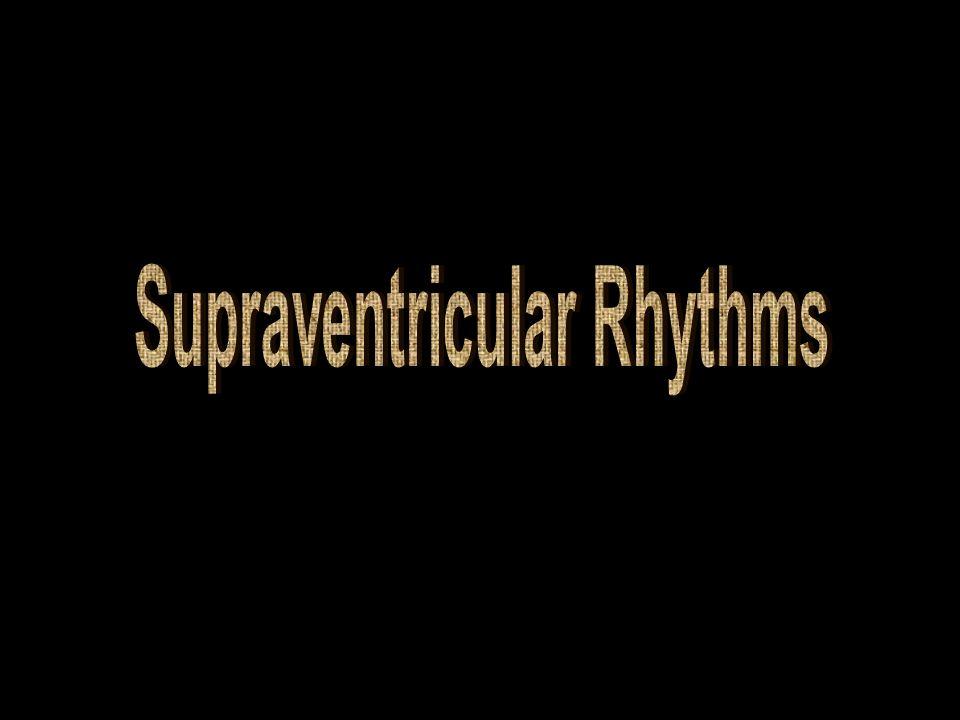 Supraventricular Rhythms