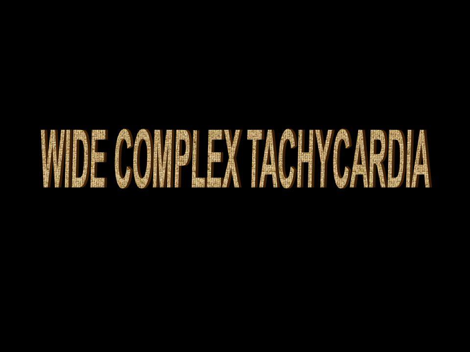 Wide complexd tachycardia