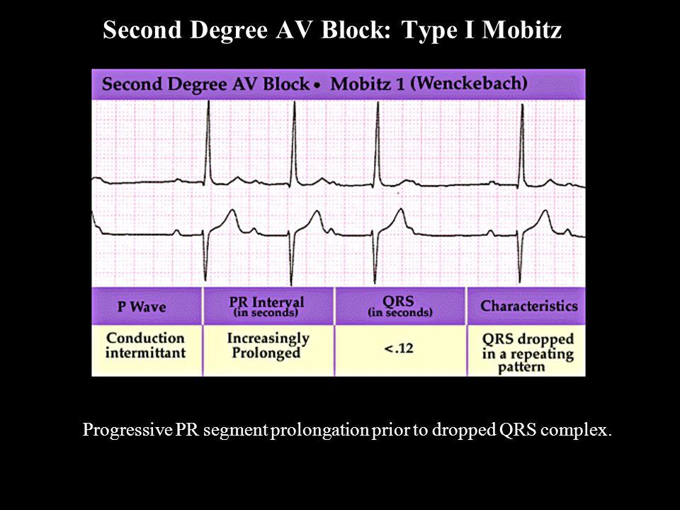Second Degree AV Block: Type I Mobitz