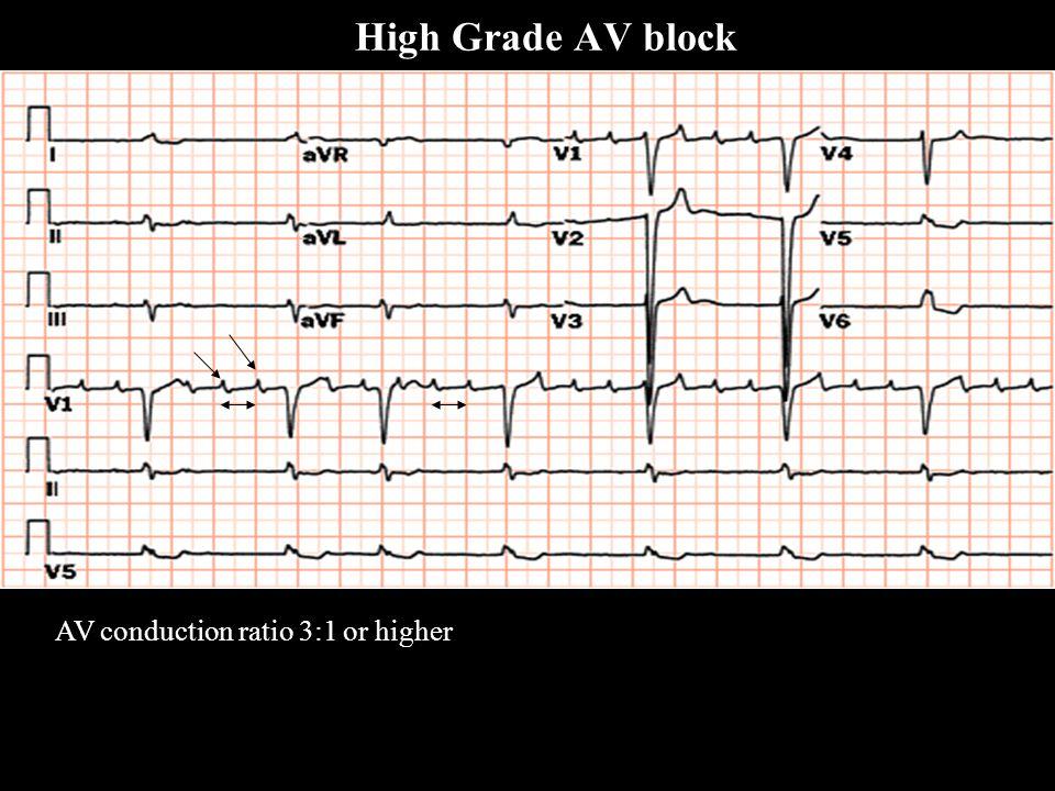 High Grade AV block AV conduction ratio 3:1 or higher