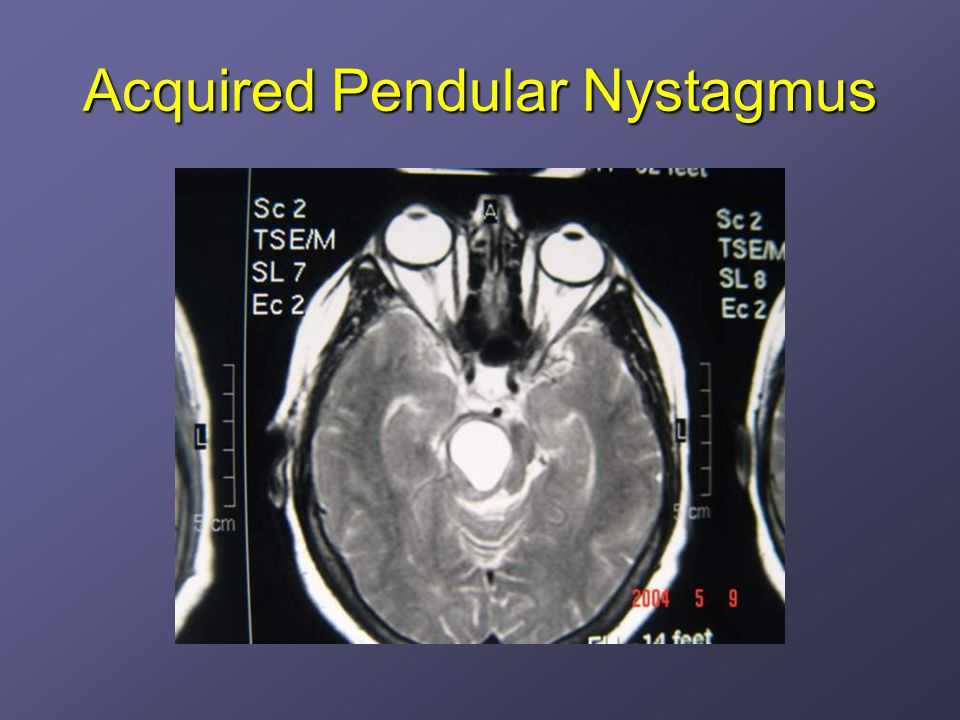 Acquired Pendular Nystagmus