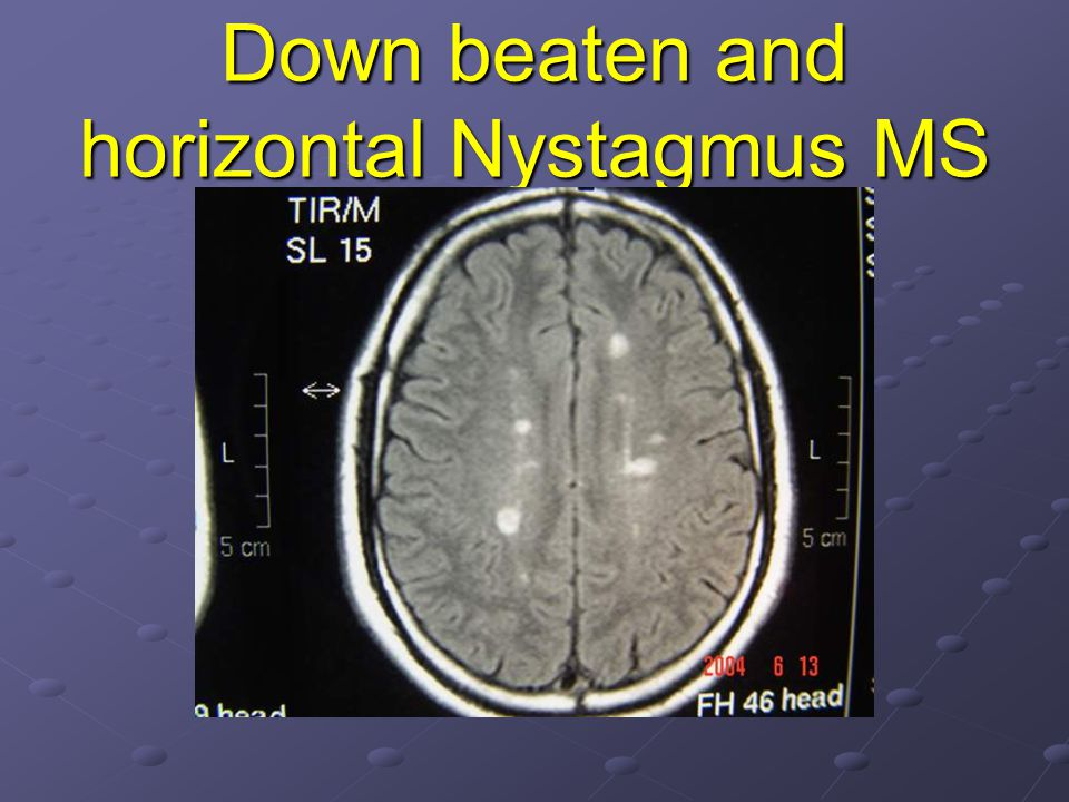 Down beaten and horizontal Nystagmus MS