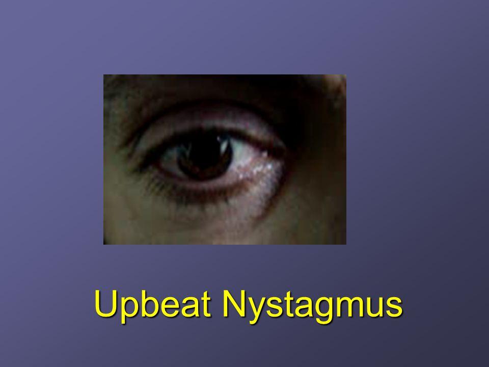 Upbeat Nystagmus