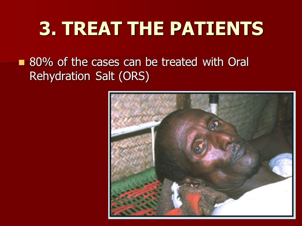 3. TREAT THE PATIENTS 80% of the cases can be treated with Oral Rehydration Salt (ORS)