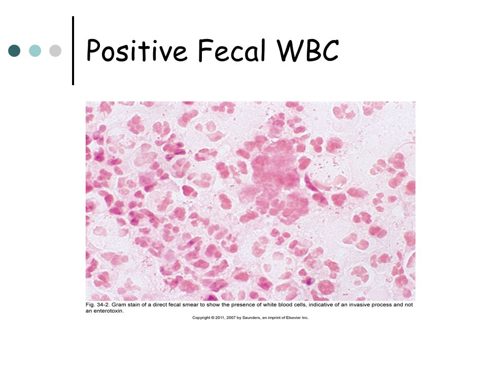 Positive Fecal WBC