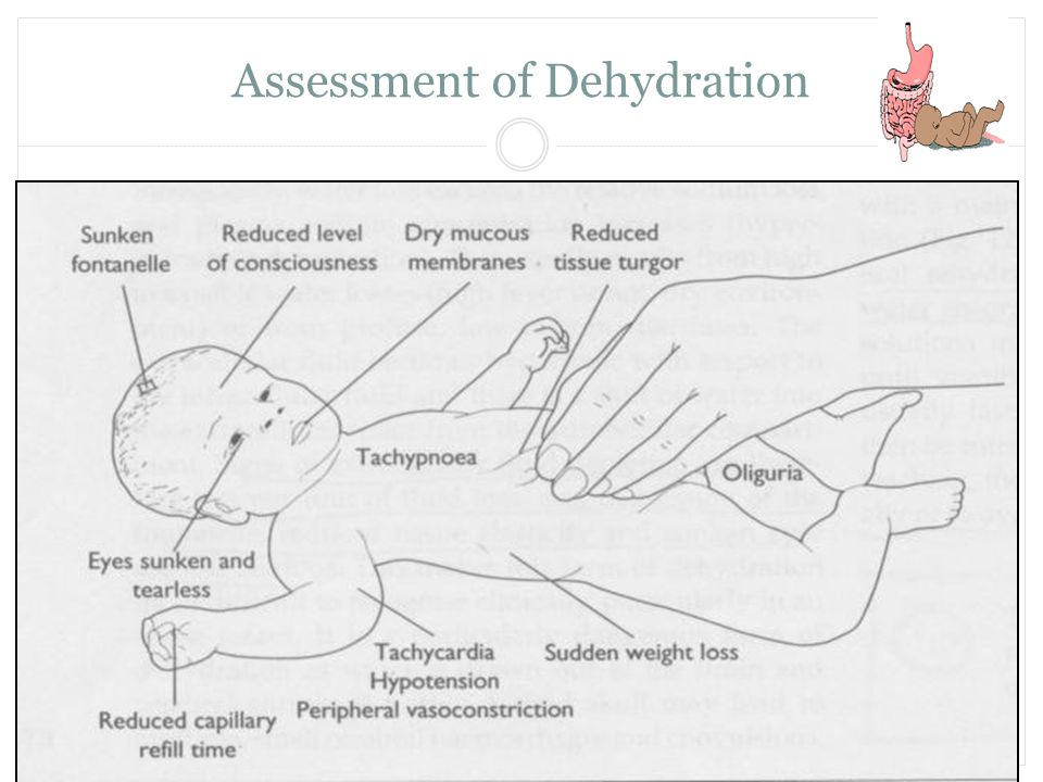 Assessment of Dehydration